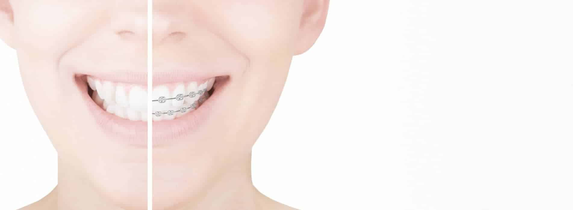 clinica-dentale-pavia-ortodonzia-caprioglio-alberto-claudia