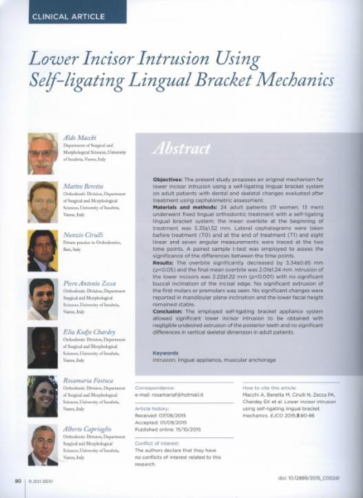 Lower incisor intrusion using Self-lifting Lingual Bracket Mechanics