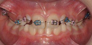 Arco di utilità superiore appoggiato su denti da latte e denti permanenti
