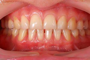 human teeth bocca sana