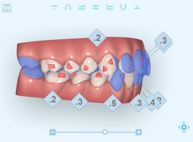 ClinCheck ortodonzia estetica
