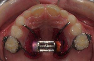 Espansore rapido palatale di Haas bondato su denti decidui