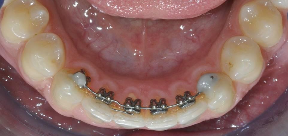 Ortodonzia - Gnatologia apparecchio