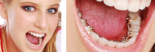 tecnica Incognito 2 ortodonzia invisibile