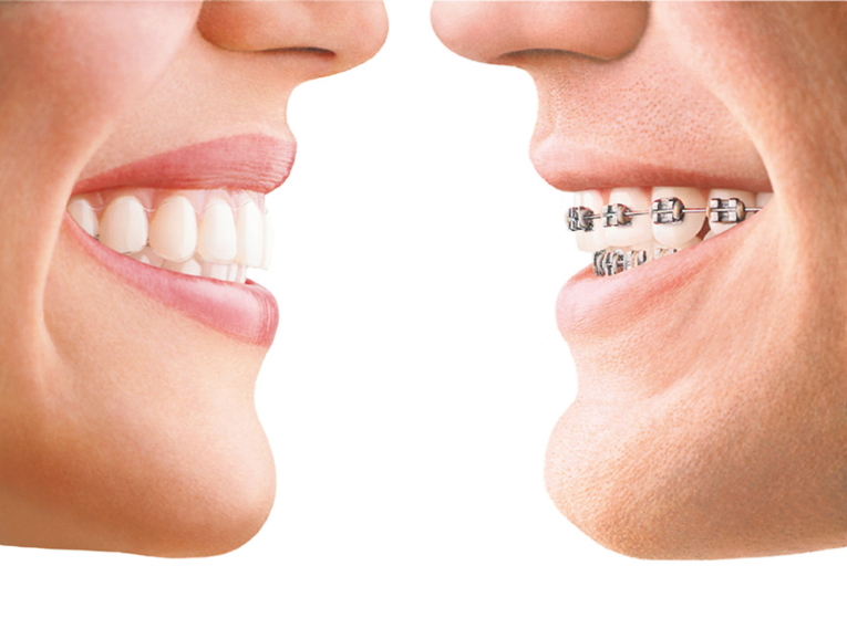 Invisalign 1 ortodonzia invisibile