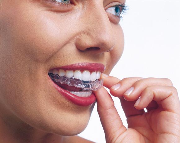 Invisalign 2 ortodonzia estetica