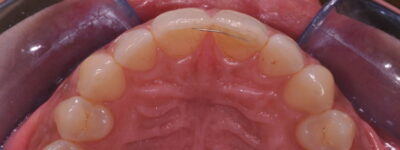 MAC ortodonzia mini invasiva