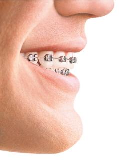 Ortodonzia fissa 1