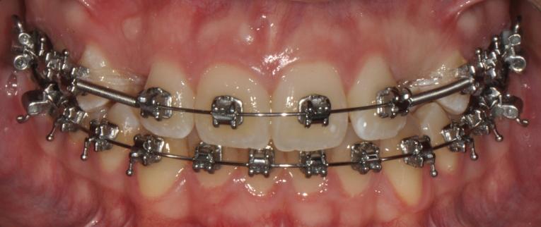Ortodonzia fissa 2