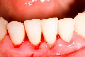 gengive arrossate dentista problema