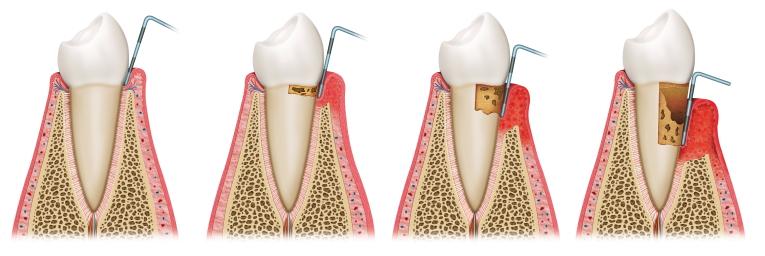 Sviluppo d una patologia parodontale