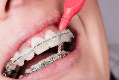 Uso dello scovolino in ortodonzia