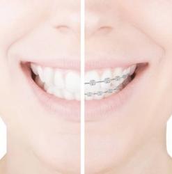 servizio-ortodonzia-dentista-caprioglio-pavia-apparecchio
