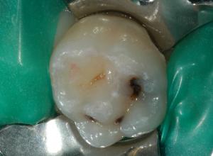 Otturazione dente da latte 1 - situazione iniziale