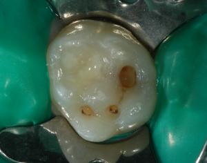 Otturazione dente da latte 3- rifinitura delle cavità