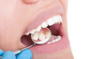 controllo carie clinica dentale caprioglio pavia