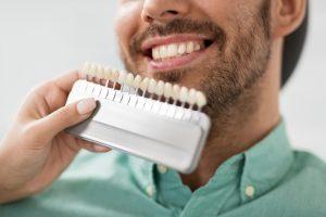 Scelta del colore in protesi dentaria clinica dentale caprioglio pavia