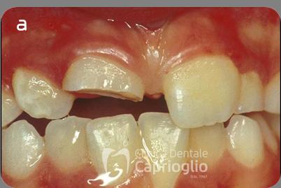 Frattura coronale complessa1