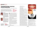 Caprioglio C. et al. - Dentista Moderno - 02-2020 - I Traumi in Dentizione Decidua